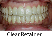 Clear Retainer in Greenwich